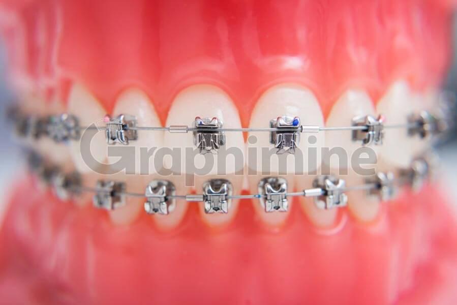 تصویر استوک ارتودنسی دندان